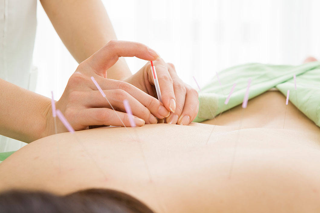Chinese Acupuncture at Southpoint Health in Miranda